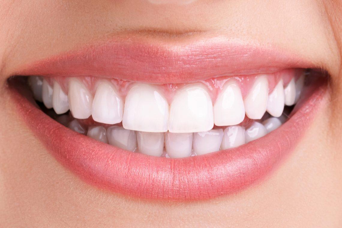 کامپوزیت باعث سفید و زیبا شدن دندان، طرح لبخند فوق العاده و رنگ عالی دندان شده است