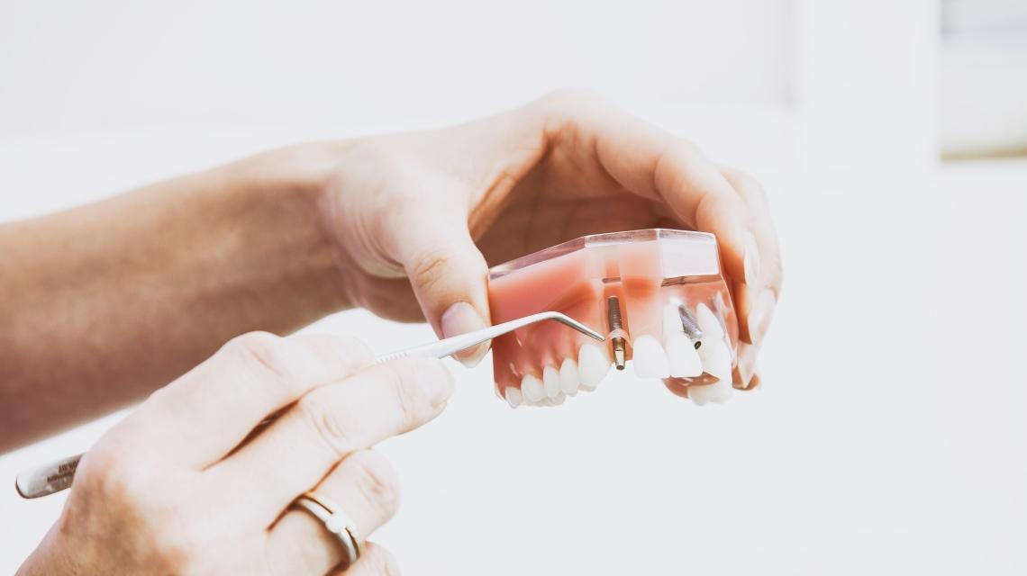 نحوه انجام ایمپلنت برای دندان ها دندان
