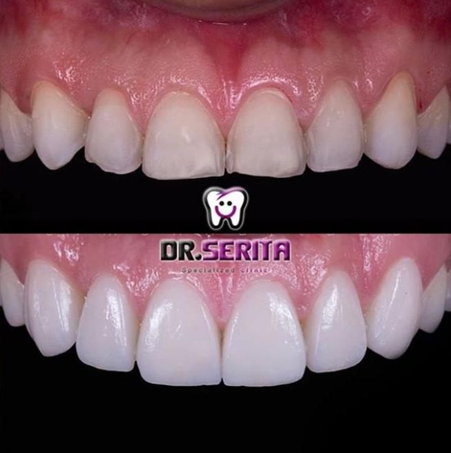 تصویر قبل و بعد از کامپوزیت دندان مشتری