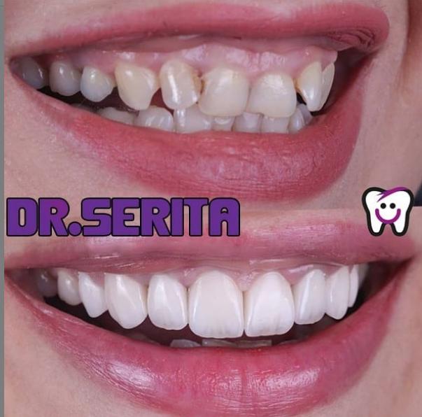 دندان های آسیب دیده که با لمینت ظاهر زیبایی پیدا کرده است