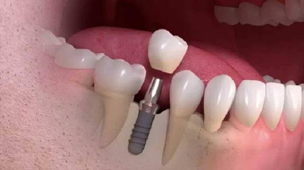 کاشت ایملنت بعد از کشیدن دندان ممکن است