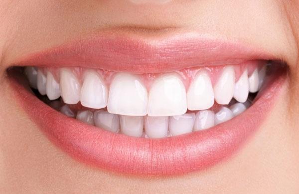 لبخندی زیباتر با ایمپلنت مورد اعتماد برای استفاده