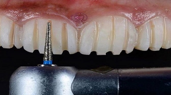 تراشیدن مینای دندان   مرحله اول لمینت دندان