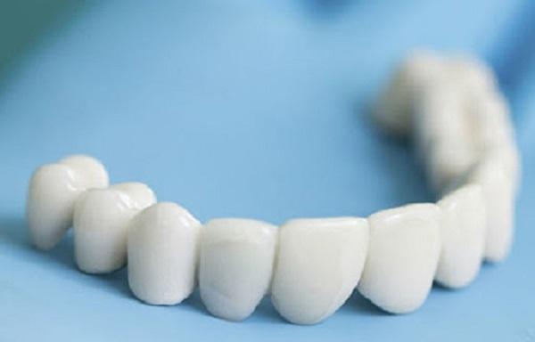 قالب گیری دندان ها   مرحله دوم لمینت دندان