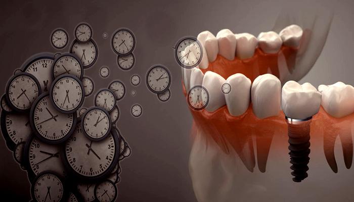 بهترین زمان برای ایمپلنت دندان