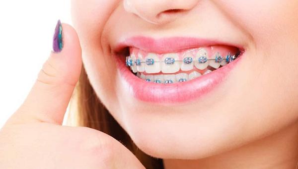 می توانید دندان های زیبا و مرتب داشته باشید، اما بهداشت دهان و دندان های خود را در این دوره فراموش نکنید.