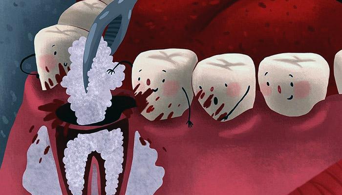 خونریزی لثه از عوارض ایمپلنت دندان