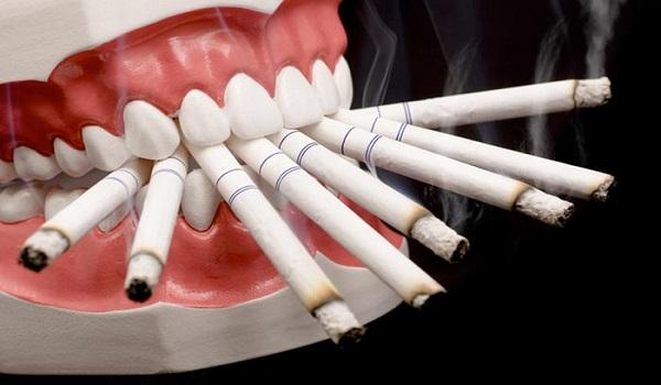 کشیدن سیگار باعث تشدید عوارض ایمپلنت می شود.