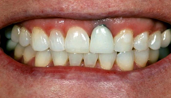 عوارض ایمپلنت دندان در بلند مدت