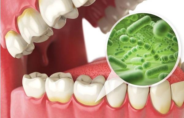 عوارض ایمپلنت دندان در دراز مدت می توان به تحریک شدن سینوس ها اشاره کرد.