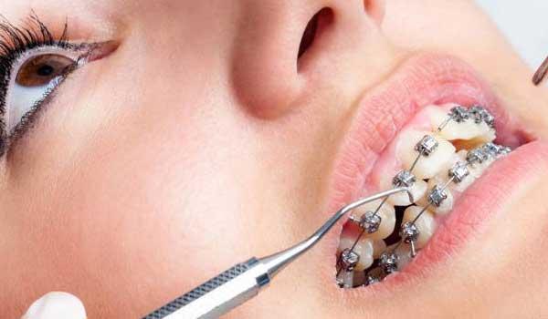 معاینه بیمار توسط دندان پزشک جهت بررسی صحت مراحل ارتودنسی