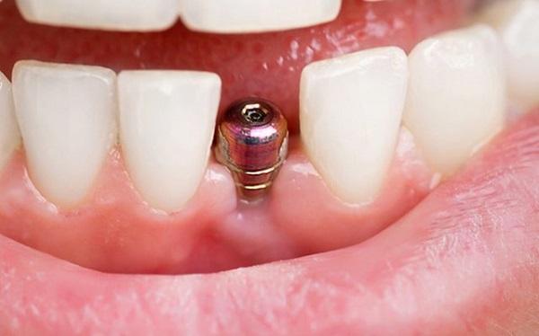 ایمپلنت دندان چقدر طول می کشد