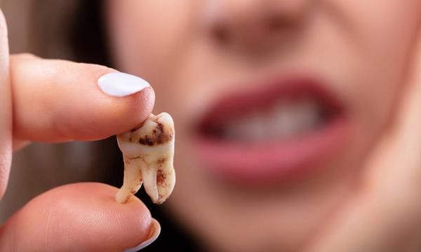 یک دندان پوسیده شده که ظاهر نامناسبی دارد