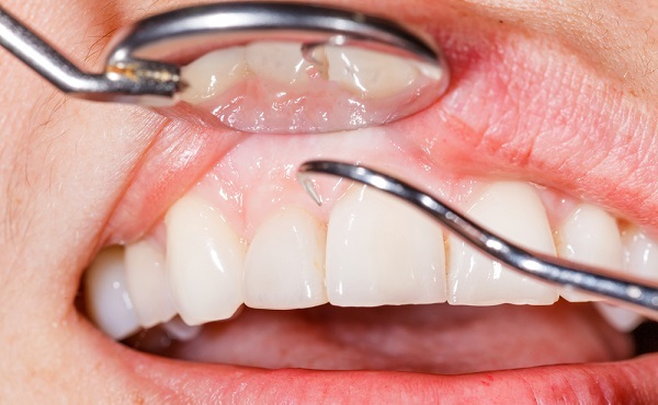 زخم لثه و عفونت های دهانی که موجب بوی بد دهان می شود.