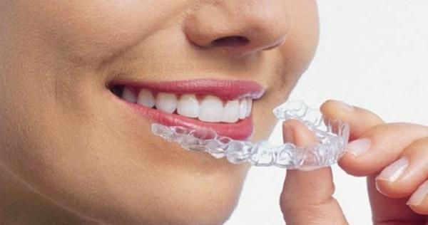 روش خانگی (in home) بلیچینگ دندان
