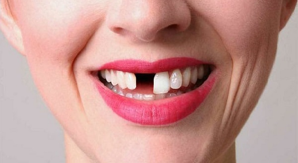 دندان افتاده وکه نیاز به جایگزینی دارد