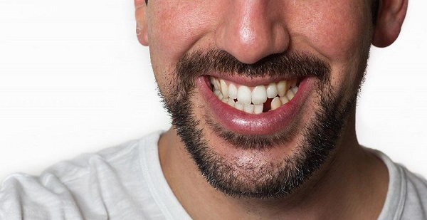 انواع راههای جایگزین دندان از دست رفته