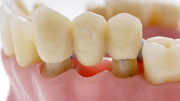 بریج دندان جهت جایگزینی دندان افتاده