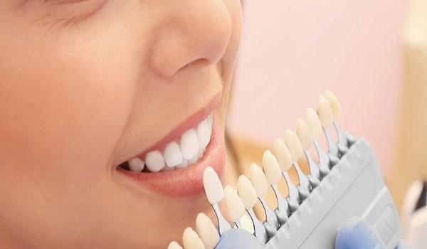 بلیچینگ دندان و رنگ لمینت دندان چه تفاوتی باهم دارند؟