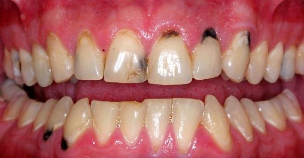 سیاه شدن دندان ها
