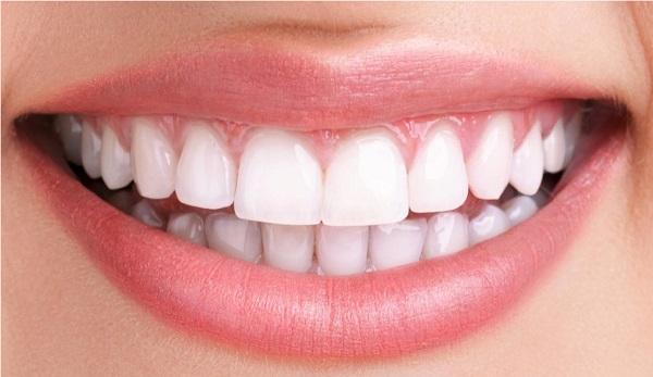 طرح لبخند هالیوودی با مواد روکشی هالیوودی و شفاف
