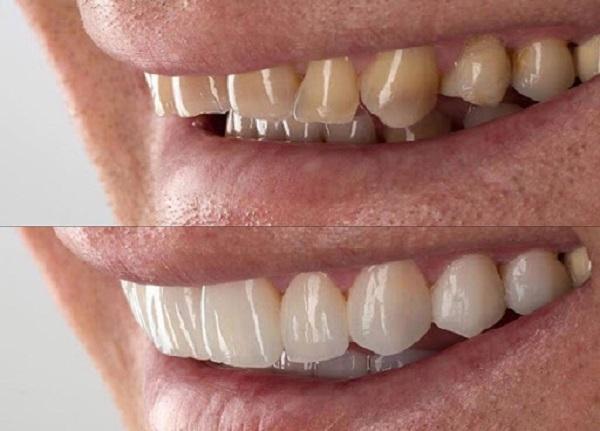 روش اصلاح دندان ها و رفع مشکلات جهت زیبایی لبخند