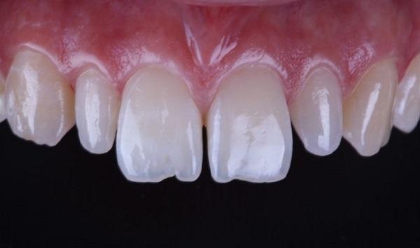 فاصله بین دندان ها که نیاز به ترمیم دارد