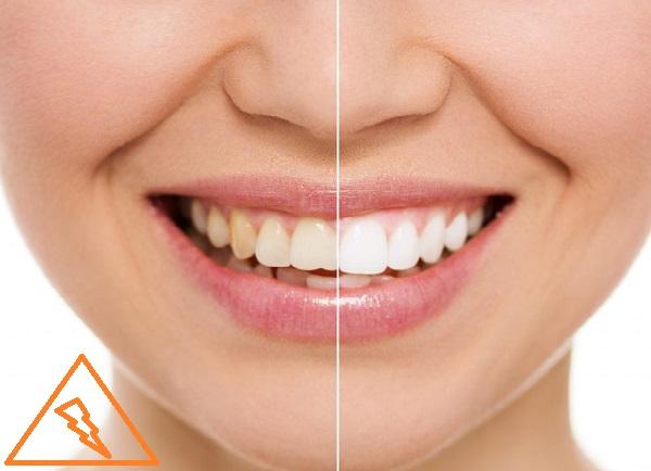 مزایا و کاربرد های کامپوزیت دندان