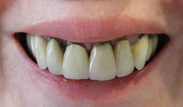 انباشته شدن جرم اطراف دندان های سالم