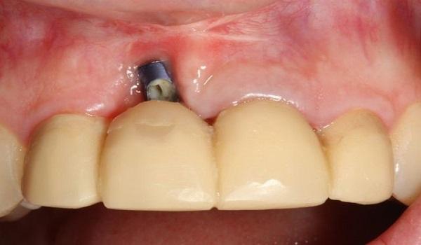 لق شدن ایمپلنت دندان و عفونت آن
