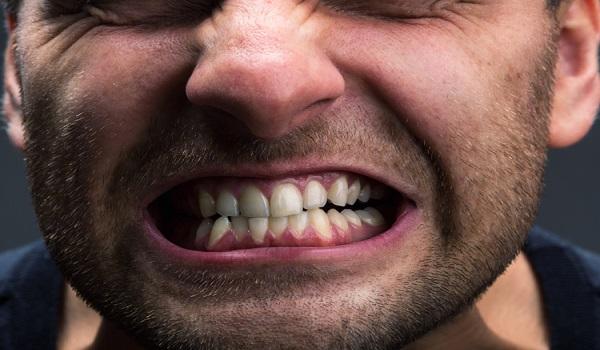 دندان قروچه از عادات بد که باعث خرابی دندان ها می شود