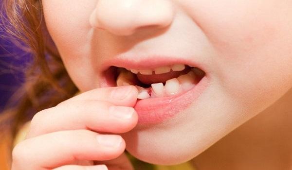 لق شدن بر اثر عصب کشی دندان