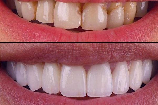 اصلاح رنگ و ظاهر دندان از مزایای لمینت بریلیانس