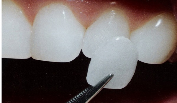 مواد تشکیل دهنده لومینیرز دندان