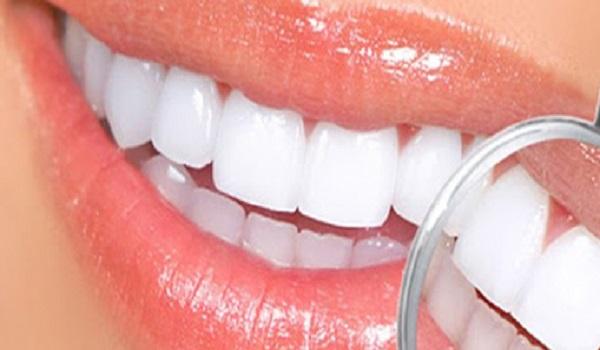 مراقبت های بعد از لومینیرز دندان