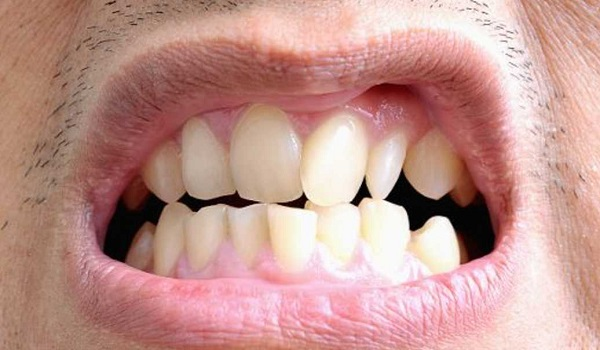 عوامل به وجود آورنده اکلوژن های فک و دندان