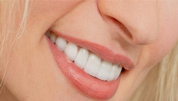 زیبایی و اعتماد به نفس بالا از مزایای لمینت دندان
