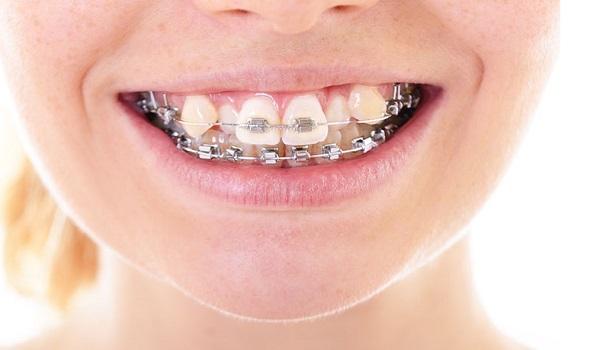ترمیم کج و کولگی با روش بریس ها و ارتودنسی دندان