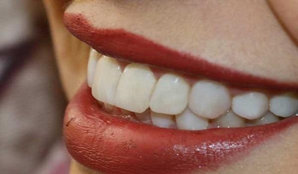 دندان هایی که با پیشگیری های لازم از کج شدگی، سالم رشد کرده اند