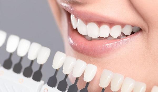 بهترین های لمینت دندان