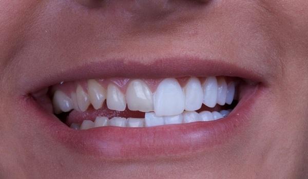 زیبایی دندان با حذف فاصله و کجی دندان در روش کامپوزیت