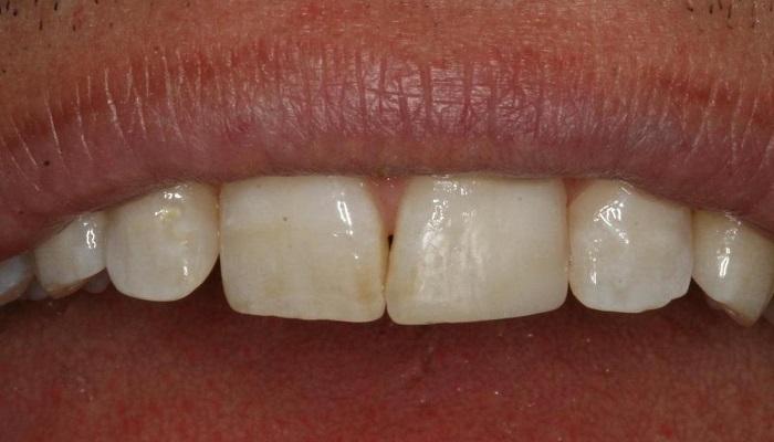 رعایت اصول بهداشت دهان و دندان، از مراقبت های بعد از کامپوزیت دندان