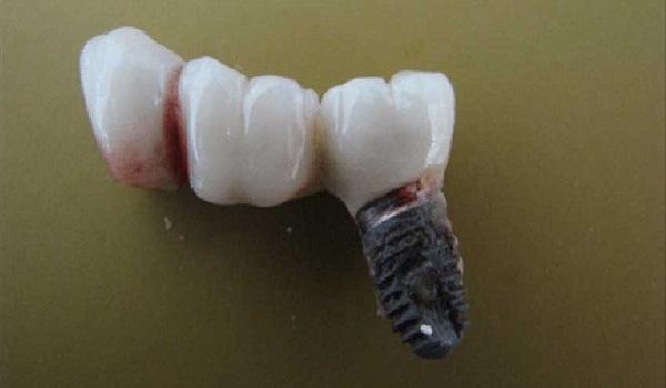 ایمپلنت ناموفق دندان