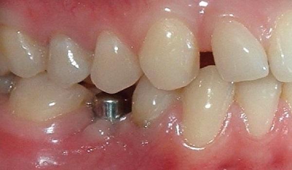 نا موفق بودن ایمپلنت دندان