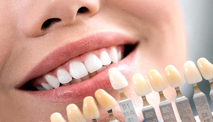 رنگ های مورد استفاده در لمینت و کامپوزیت دندان
