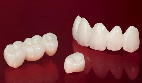 روکش و کامپوزیت دندان