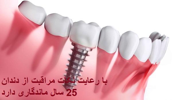 ماندگاری و طول عمر ایمپلنت دندان