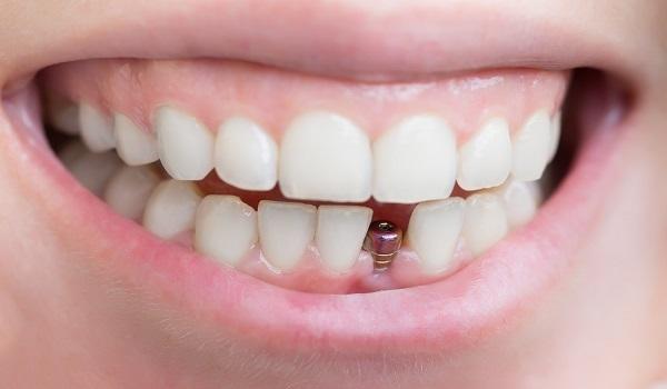 معایب و عوارض ایمپلنت دندان