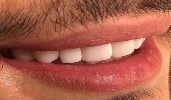 لمینت و کامپوزیت دندان کدام بهتر اند