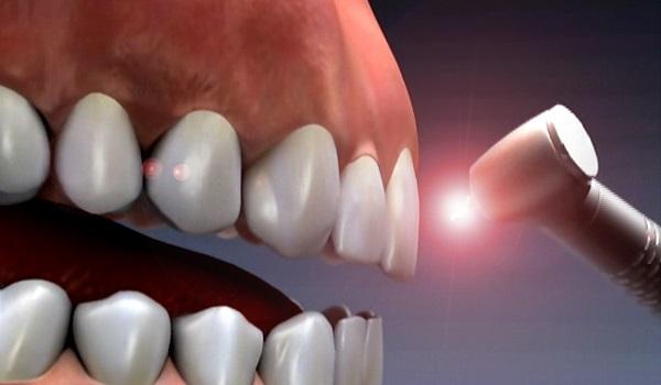 مزایا استفاده از لیزر در کاشت دندان